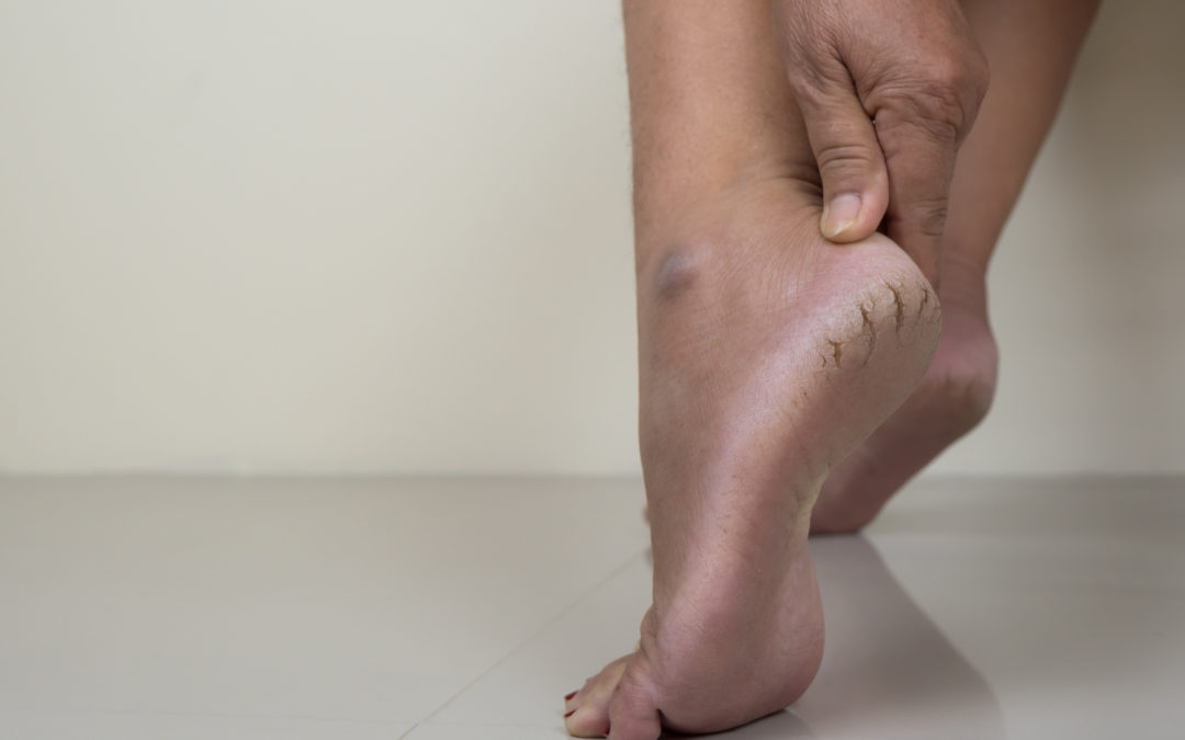 Dry Cracked Heels: 5 Things You Can Do About Them