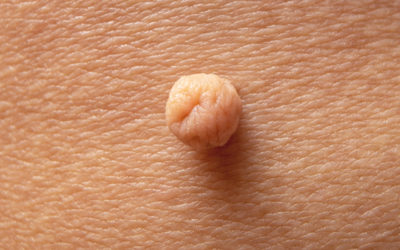 4 Effective Ways to Get Rid of a Skin Tag