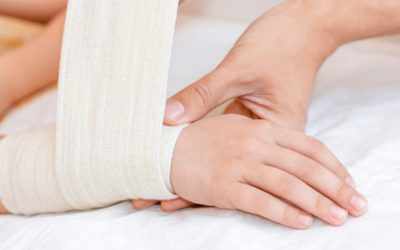 Ultimate Guide to Treating a Sprained Wrist