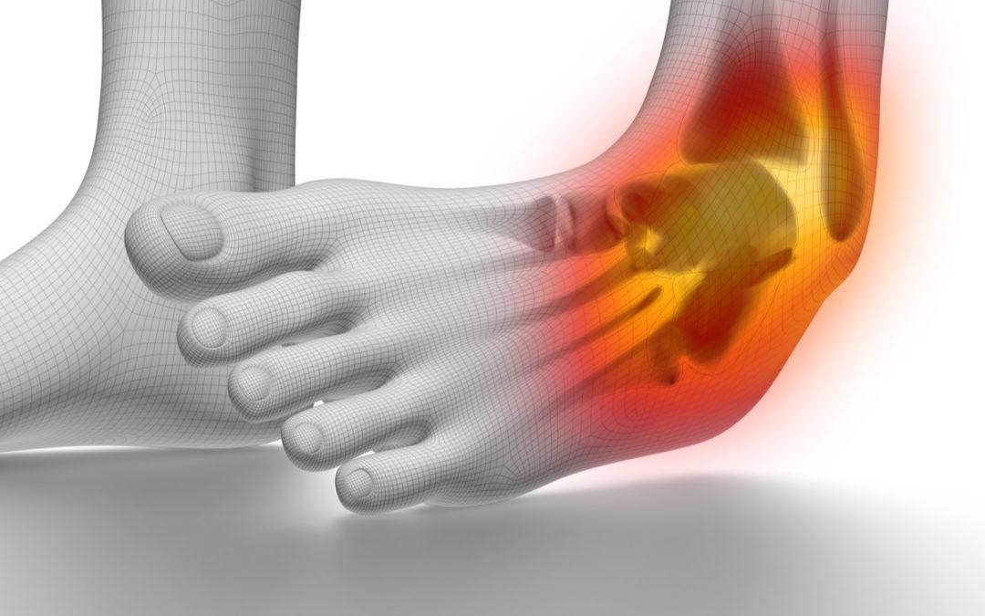 How To Treat a High Ankle Sprain
