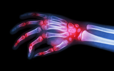 10 Common Types of Arthritis and What You Can Do About Them