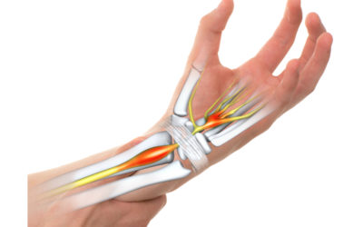 Carpal Tunnel vs. Arthritis: What's the Difference?