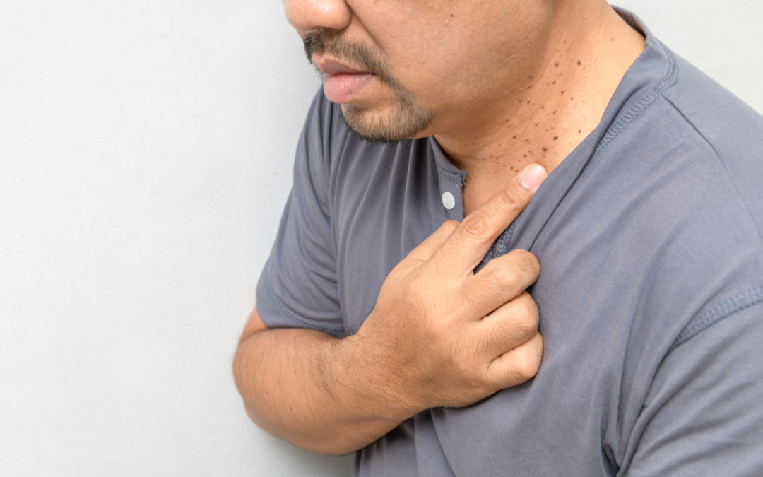 Skin Tag vs Wart: How To Tell the Difference