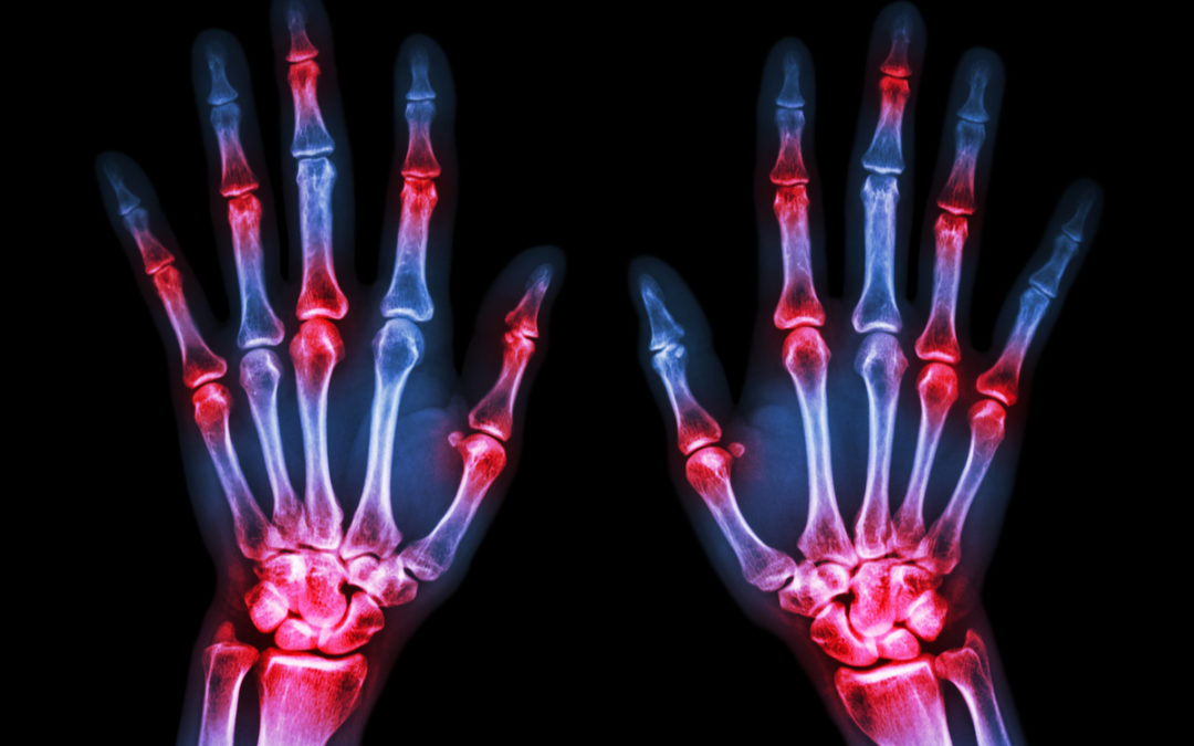 Arthritis vs Arthralgia: What's the Difference?