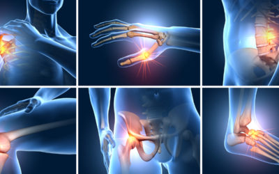 Sudden Onset Joint Pain in Multiple Joints